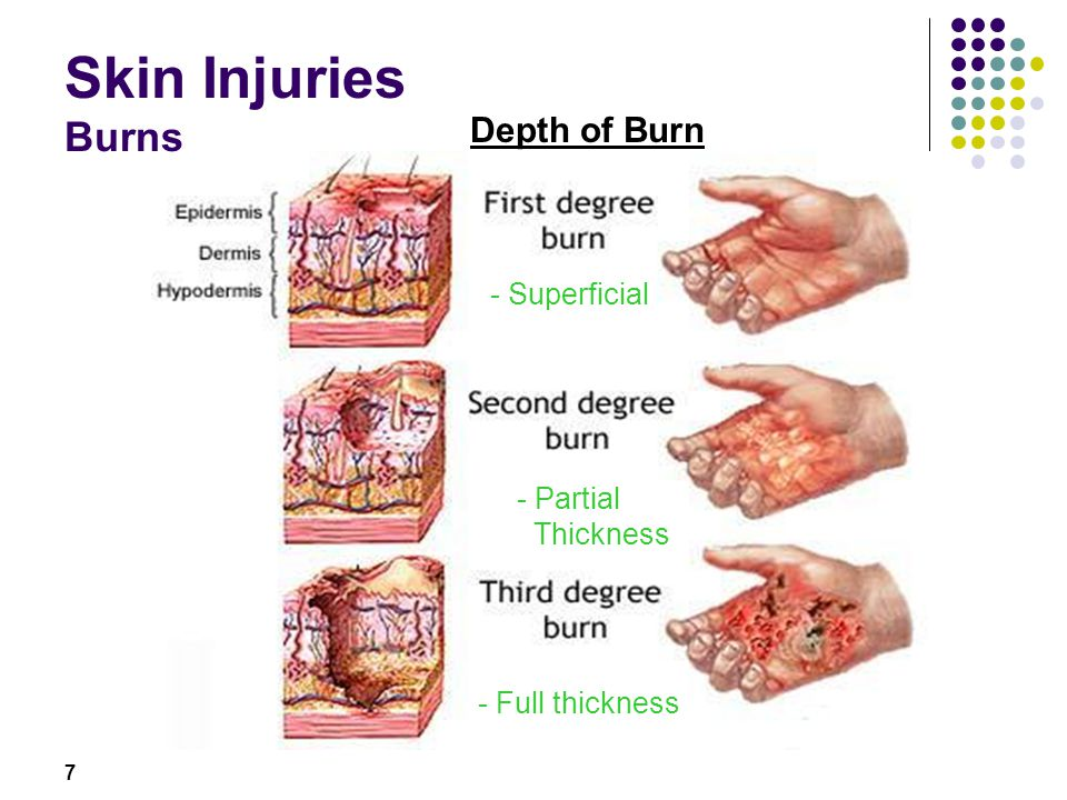 7 Skin Injuries Burns Depth of Burn - Superficial - Partial Thickness - Full thickness