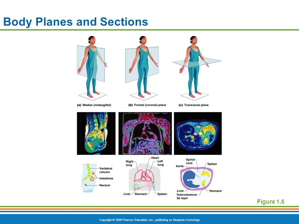 Copyright © 2009 Pearson Education, Inc., publishing as Benjamin Cummings Body Planes and Sections Figure 1.6