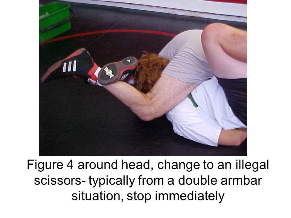 Figure 4 around head, change to an illegal scissors- typically from a double armbar situation, stop immediately