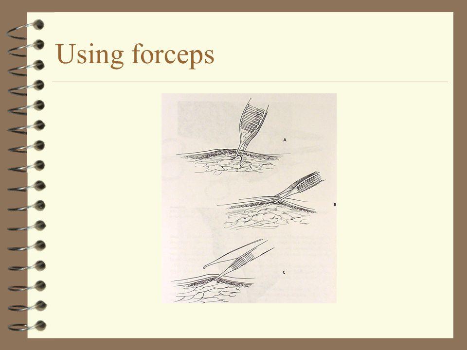 Using forceps