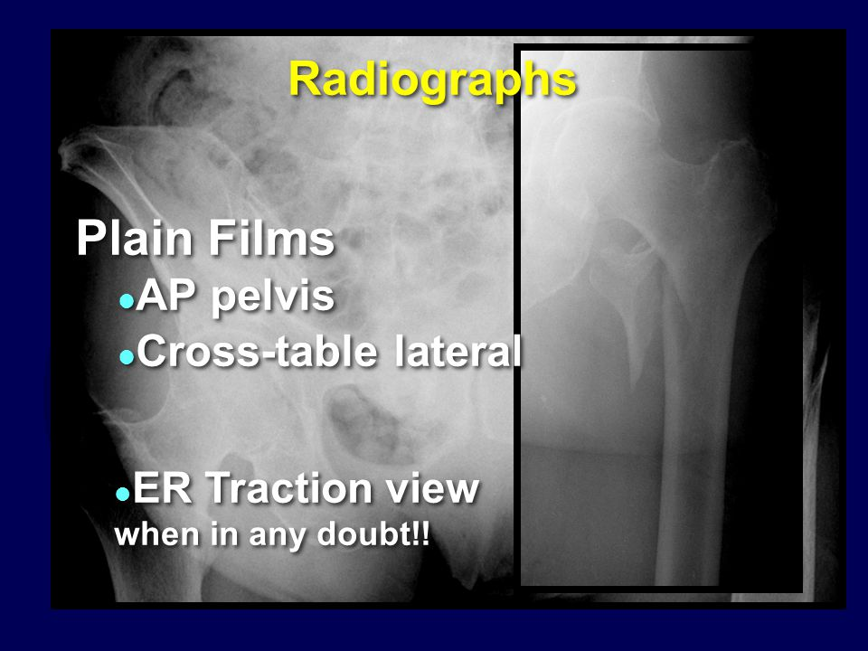 Fracture Reduction  No role for displacement osteotomy  Limited role for reduction & fixation of trochanteric fragments (biology vs stability) Surgical goal: Biplanar, anatomic alignment of proximal & shaft fragments Mild valgus reduction for  instability to offset shortening  No role for displacement osteotomy  Limited role for reduction & fixation of trochanteric fragments (biology vs stability) Surgical goal: Biplanar, anatomic alignment of proximal & shaft fragments Mild valgus reduction for  instability to offset shortening When employing sliding hip screws… RCT Gargan, et al.