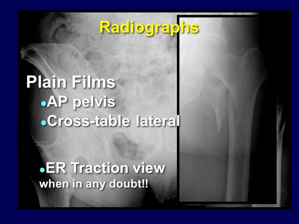 IM Fixation: Mechanical Advantages ? ? ! ! Surgeon controlled factor: Implant selection