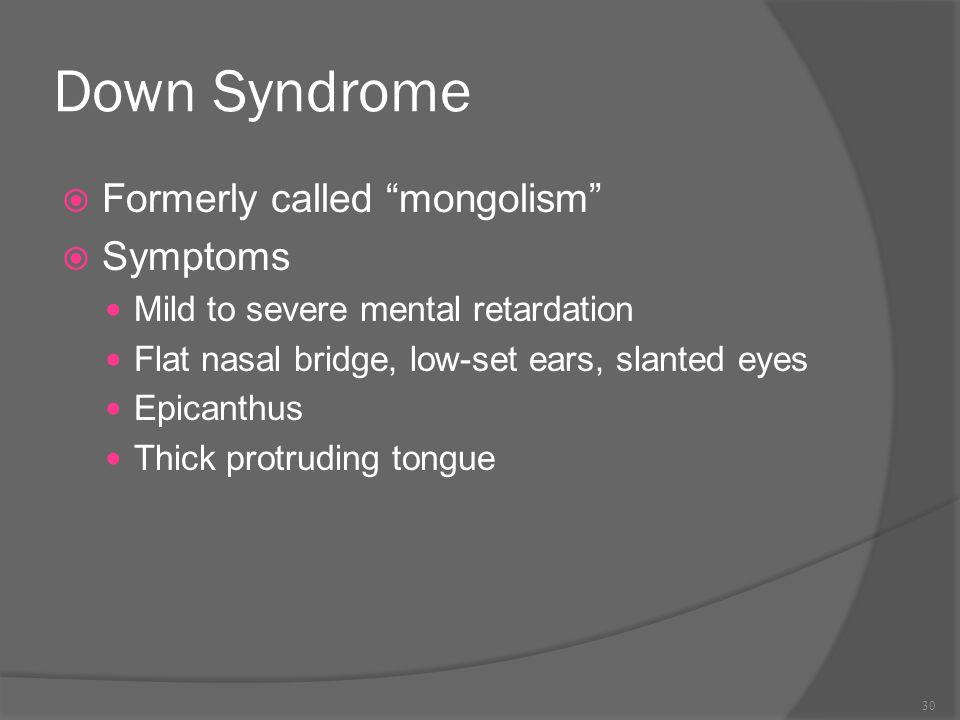 "Down Syndrome  Formerly called ""mongolism""  Symptoms Mild to severe mental retardation Flat nasal bridge, low-set ears, slanted eyes Epicanthus Thic"