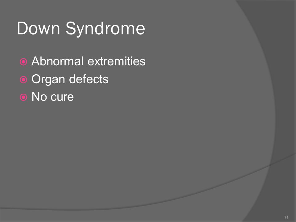 Down Syndrome  Abnormal extremities  Organ defects  No cure 31