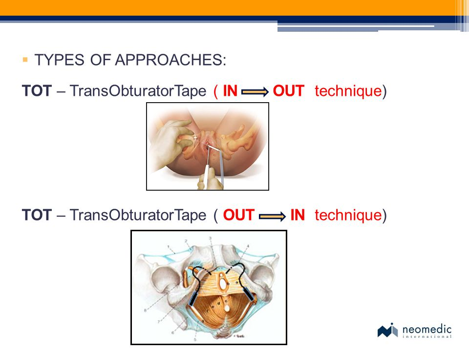 TYPES OF APPROACHES: TOT – TransObturatorTape ( IN OUT technique) TOT – TransObturatorTape ( OUT IN technique)