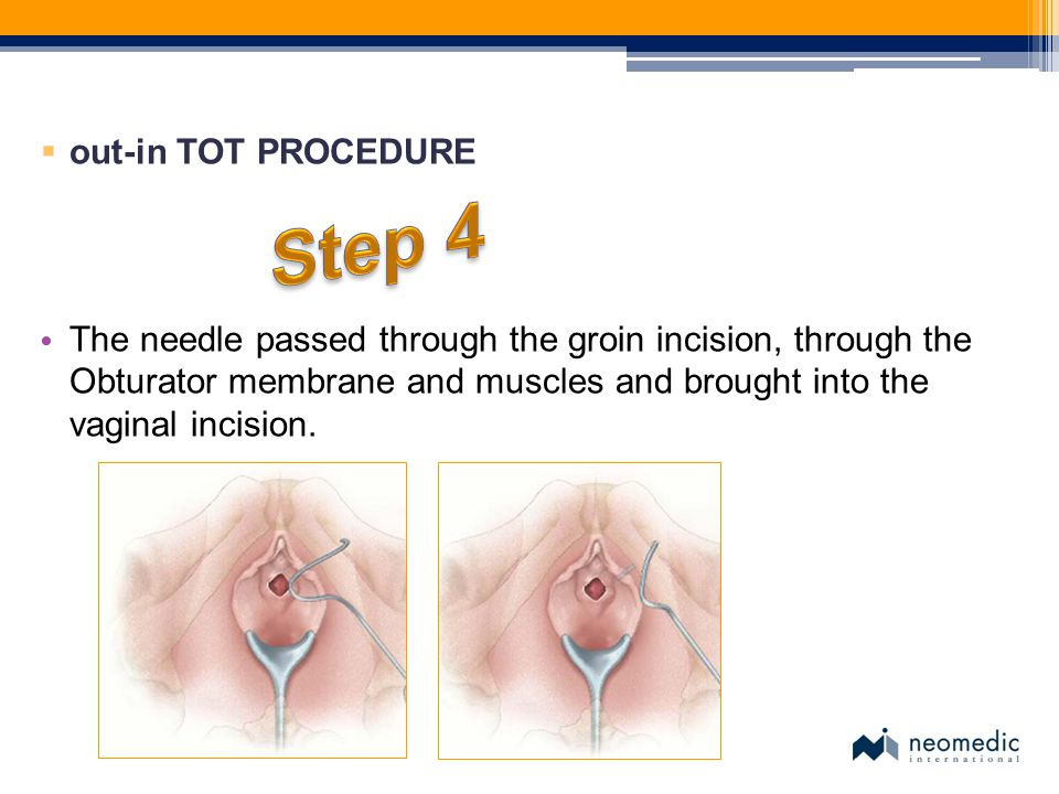  out-in TOT PROCEDURE The needle passed through the groin incision, through the Obturator membrane and muscles and brought into the vaginal incision.