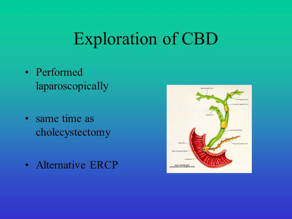 Exploration of CBD Performed laparoscopically same time as cholecystectomy Alternative ERCP