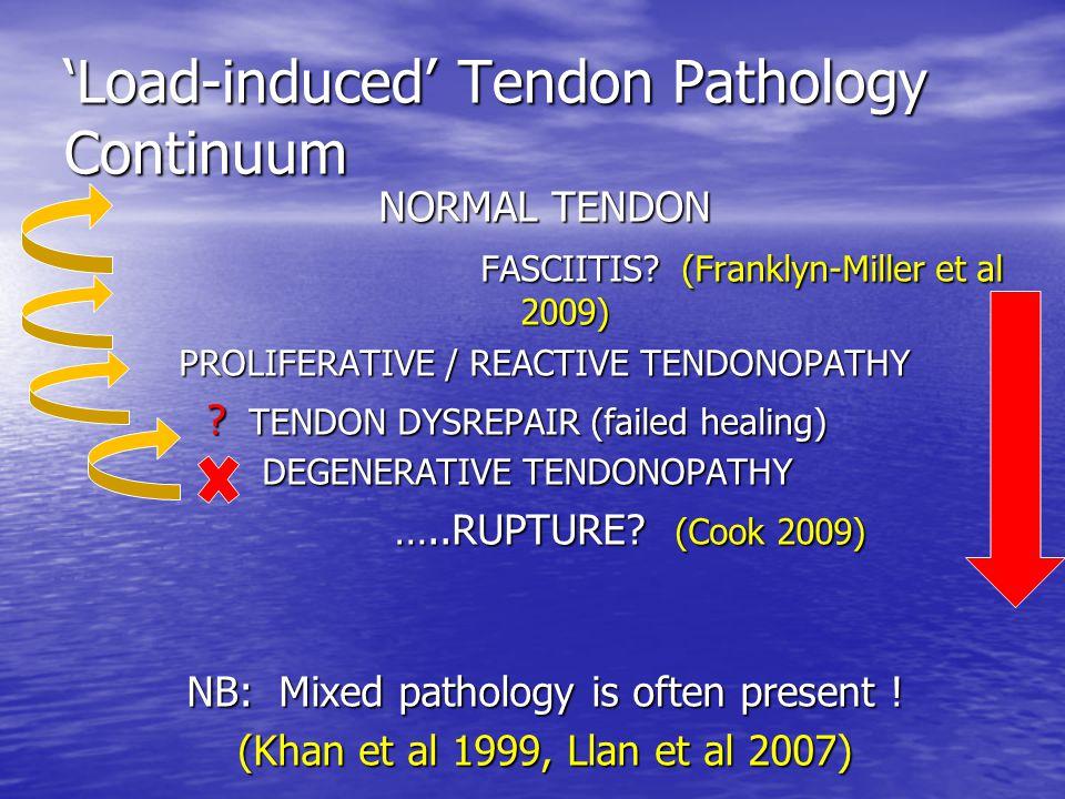 'Load-induced' Tendon Pathology Continuum NORMAL TENDON FASCIITIS? (Franklyn-Miller et al 2009) FASCIITIS? (Franklyn-Miller et al 2009) PROLIFERATIVE