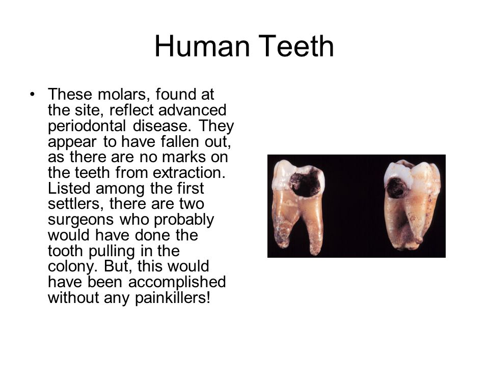 Human Teeth These molars, found at the site, reflect advanced periodontal disease.