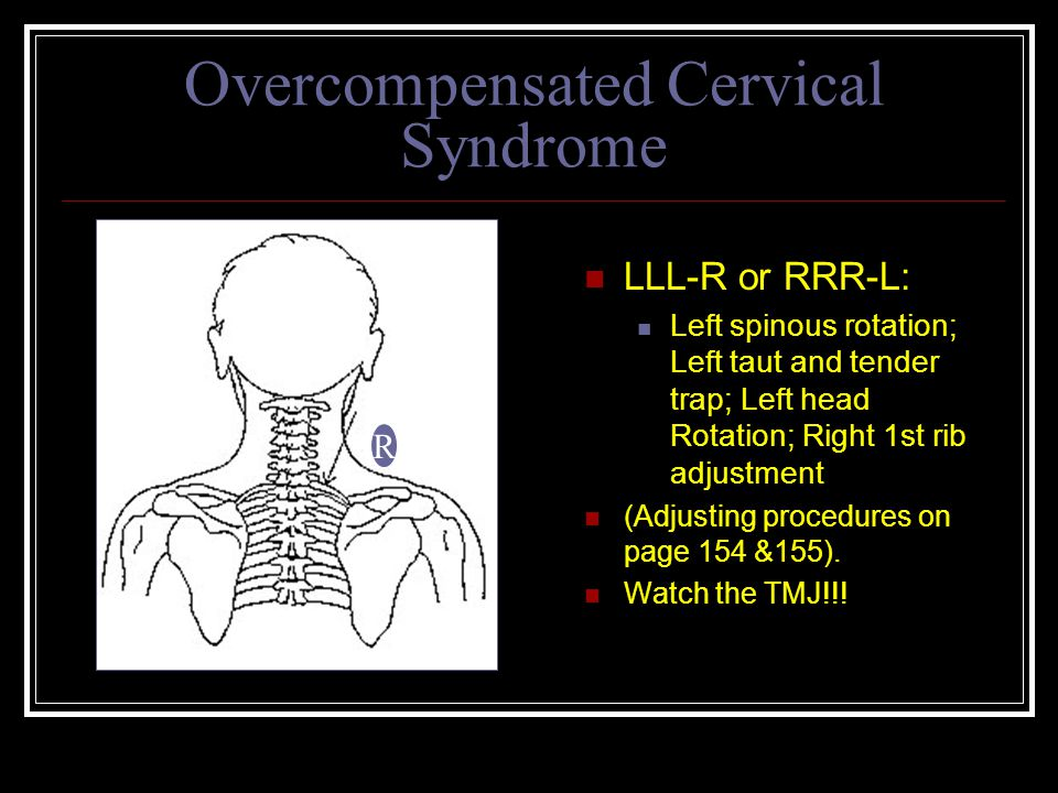 Overcompensated Cervical Syndrome LLL-R or RRR-L: Left spinous rotation; Left taut and tender trap; Left head Rotation; Right 1st rib adjustment (Adjusting procedures on page 154 &155).