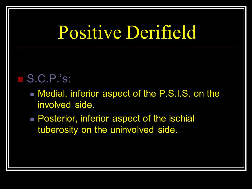Positive Derifield S.C.P.'s: Medial, inferior aspect of the P.S.I.S.