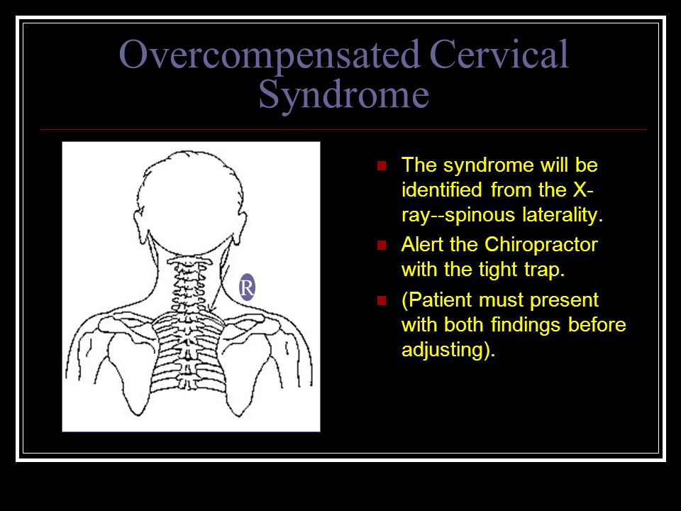 Overcompensated Cervical Syndrome The syndrome will be identified from the X- ray--spinous laterality.