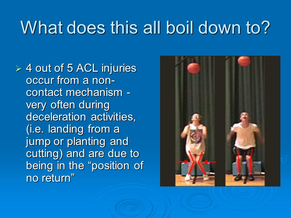 What does this all boil down to?  4 out of 5 ACL injuries occur from a non- contact mechanism - very often during deceleration activities, (i.e. land