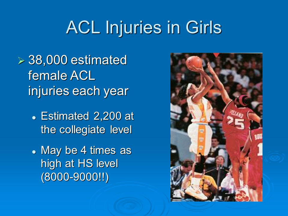 ACL Injuries in Girls  38,000 estimated female ACL injuries each year Estimated 2,200 at the collegiate level Estimated 2,200 at the collegiate level
