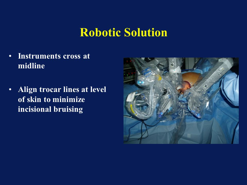 Robotic Solution Instruments cross at midline Align trocar lines at level of skin to minimize incisional bruising