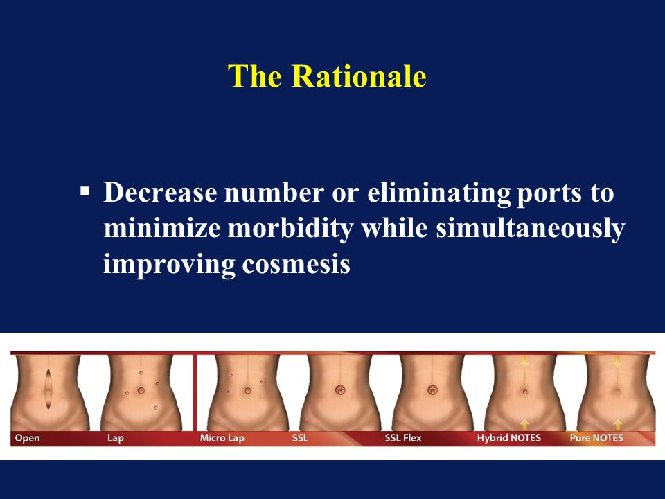 The Rationale  Decrease number or eliminating ports to minimize morbidity while simultaneously improving cosmesis