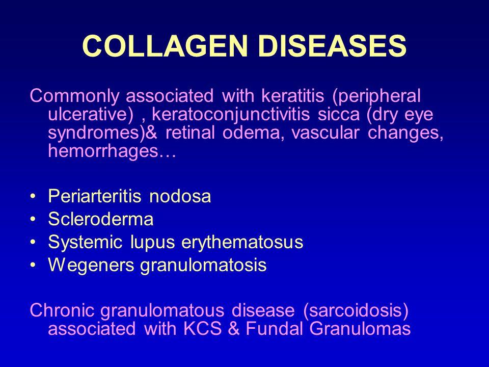 COLLAGEN DISEASES Commonly associated with keratitis (peripheral ulcerative), keratoconjunctivitis sicca (dry eye syndromes)& retinal odema, vascular changes, hemorrhages… Periarteritis nodosa Scleroderma Systemic lupus erythematosus Wegeners granulomatosis Chronic granulomatous disease (sarcoidosis) associated with KCS & Fundal Granulomas
