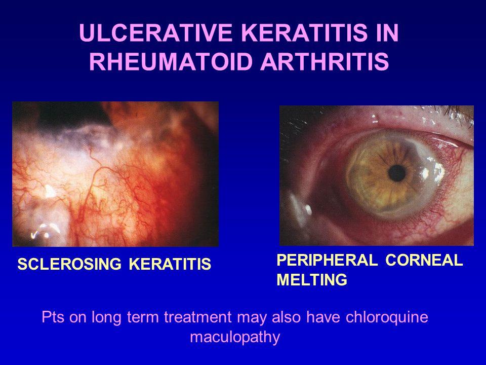 ULCERATIVE KERATITIS IN RHEUMATOID ARTHRITIS SCLEROSING KERATITIS PERIPHERAL CORNEAL MELTING Pts on long term treatment may also have chloroquine maculopathy