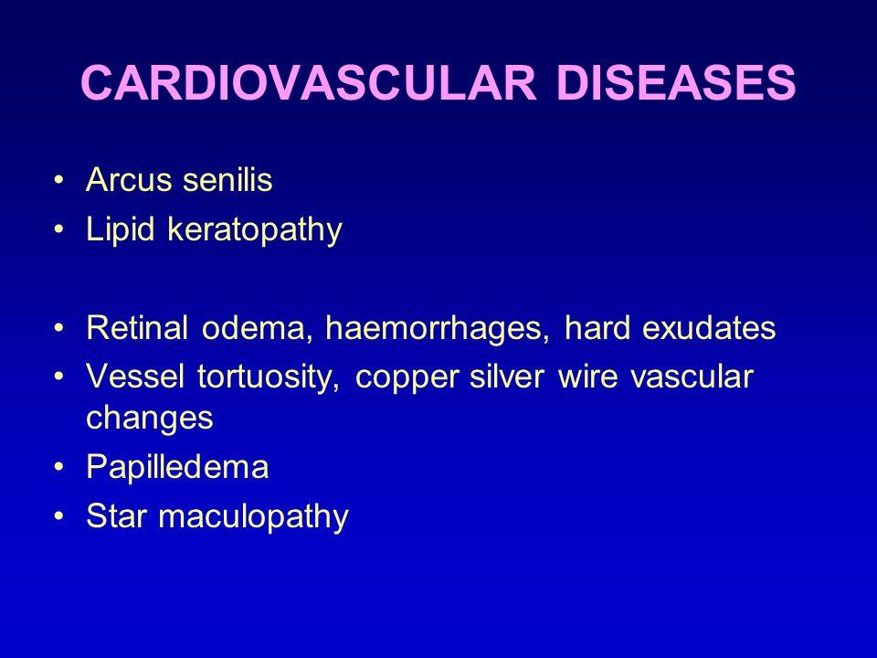 CARDIOVASCULAR DISEASES Arcus senilis Lipid keratopathy Retinal odema, haemorrhages, hard exudates Vessel tortuosity, copper silver wire vascular changes Papilledema Star maculopathy