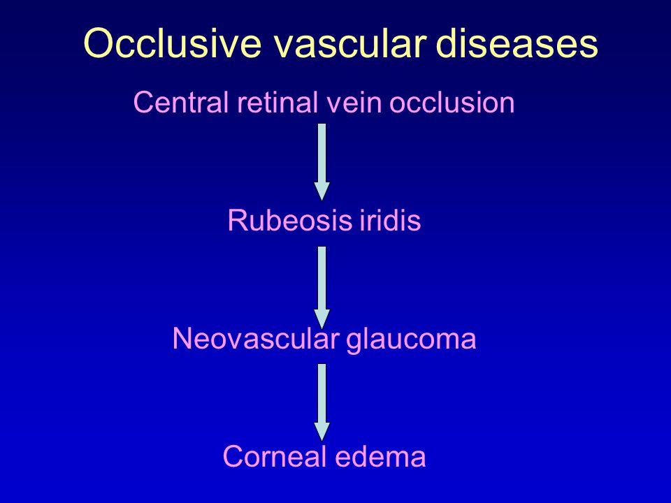 Occlusive vascular diseases Central retinal vein occlusion Rubeosis iridis Neovascular glaucoma Corneal edema