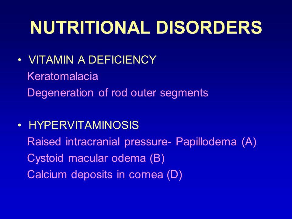 NUTRITIONAL DISORDERS VITAMIN A DEFICIENCY Keratomalacia Degeneration of rod outer segments HYPERVITAMINOSIS Raised intracranial pressure- Papillodema (A) Cystoid macular odema (B) Calcium deposits in cornea (D)