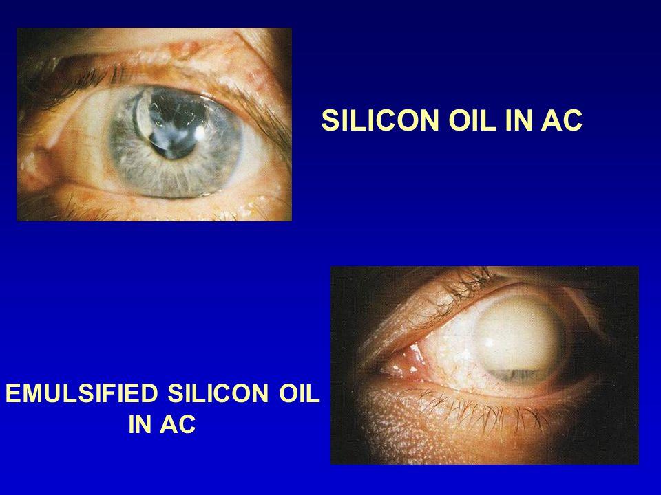 SILICON OIL IN AC EMULSIFIED SILICON OIL IN AC