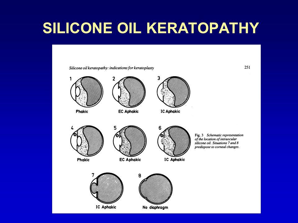 SILICONE OIL KERATOPATHY