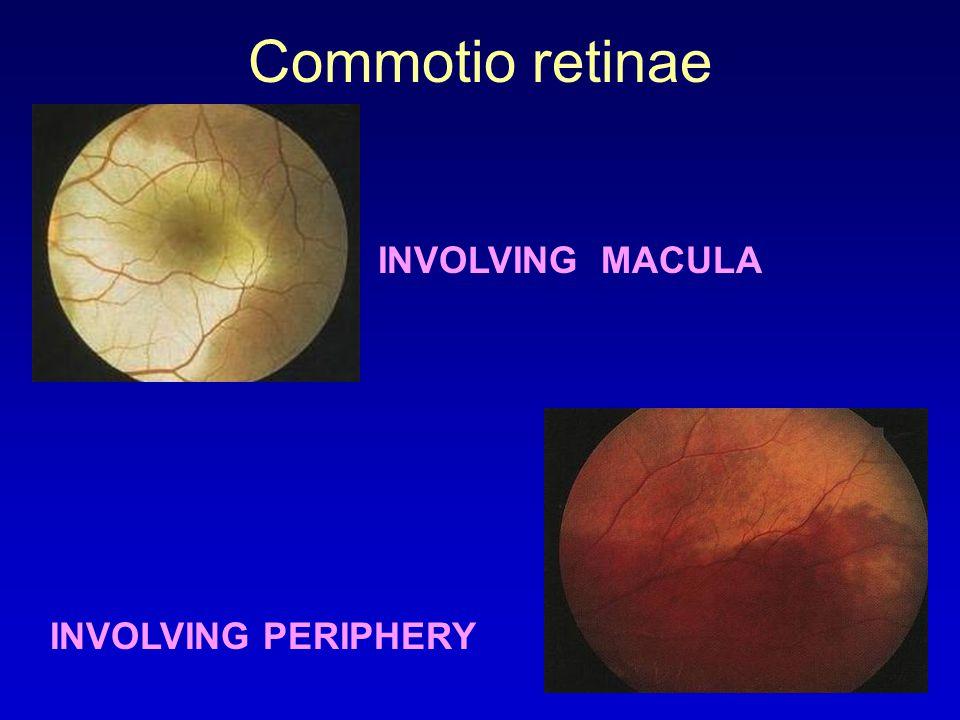 Commotio retinae INVOLVING MACULA INVOLVING PERIPHERY