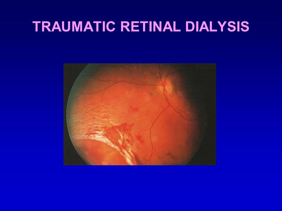 TRAUMATIC RETINAL DIALYSIS