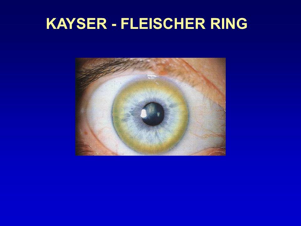 KAYSER - FLEISCHER RING