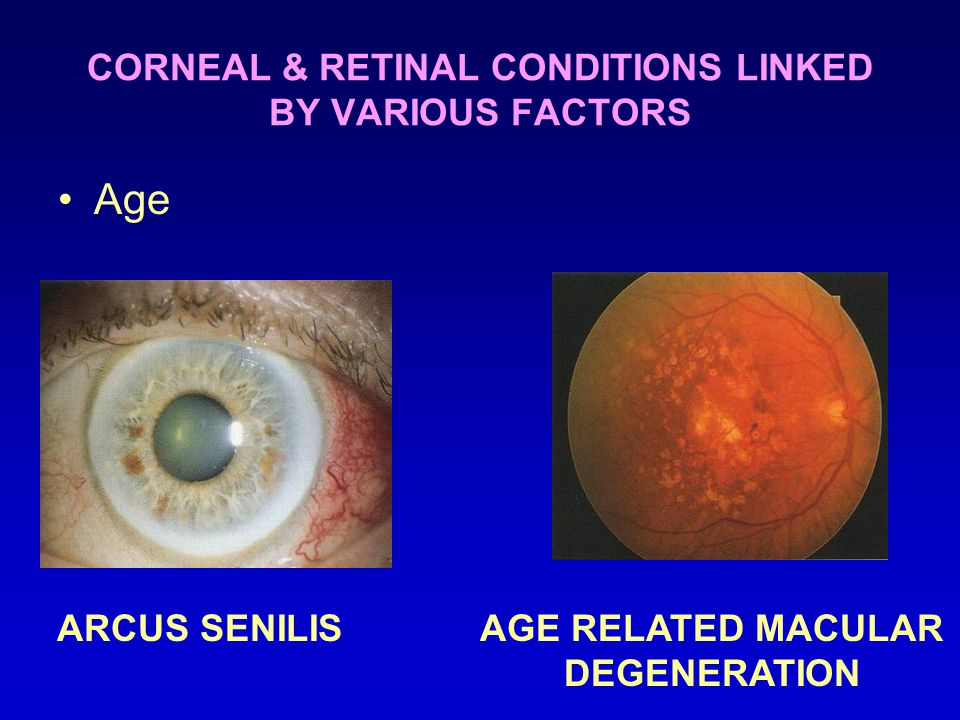 CORNEAL & RETINAL CONDITIONS LINKED BY VARIOUS FACTORS Age ARCUS SENILISAGE RELATED MACULAR DEGENERATION