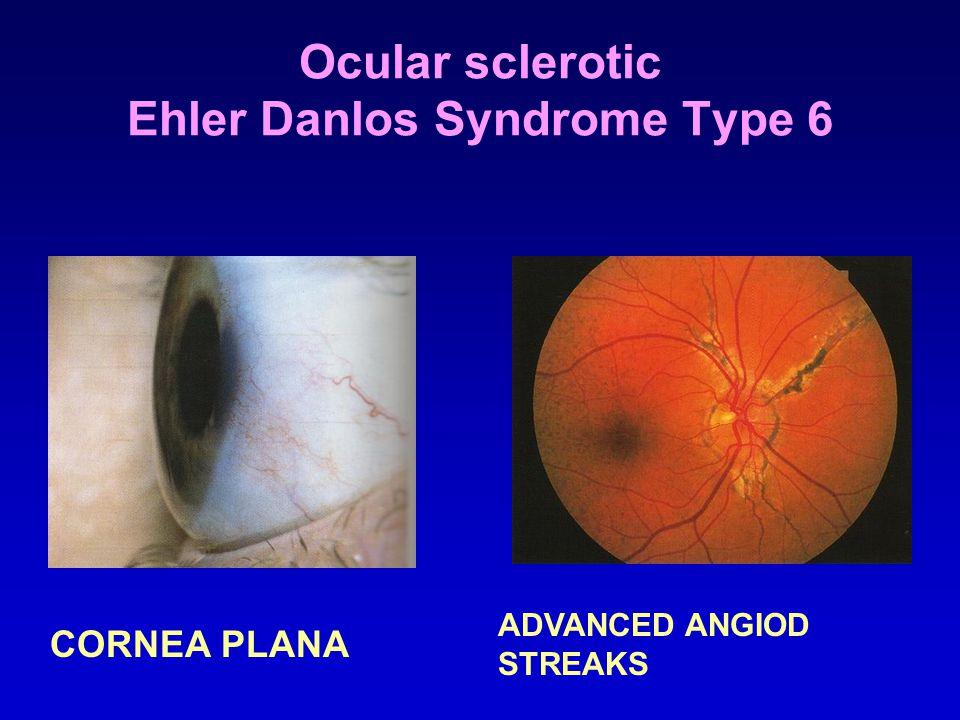Ocular sclerotic Ehler Danlos Syndrome Type 6 CORNEA PLANA ADVANCED ANGIOD STREAKS
