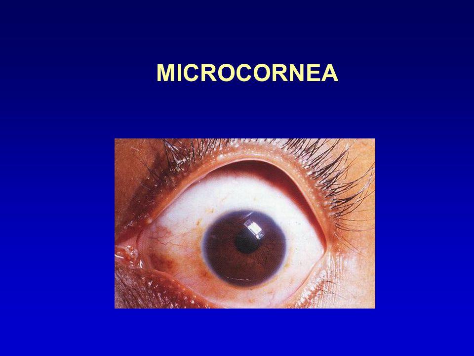 MICROCORNEA