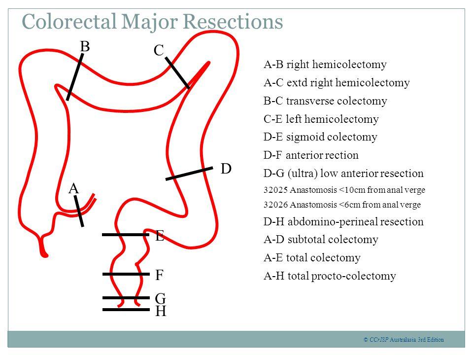 Laparoscopic Resection