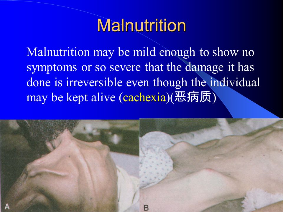 Malnutrition Malnutrition may be mild enough to show no symptoms or so severe that the damage it has done is irreversible even though the individual m