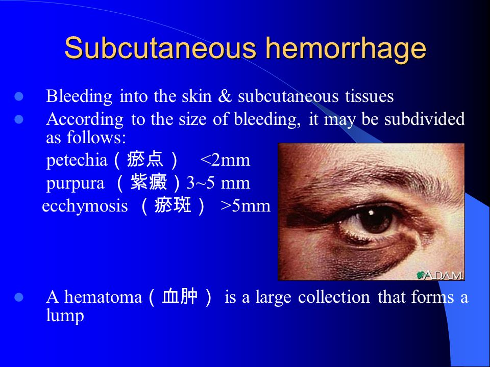 Subcutaneous hemorrhage Bleeding into the skin & subcutaneous tissues According to the size of bleeding, it may be subdivided as follows: petechia (瘀点