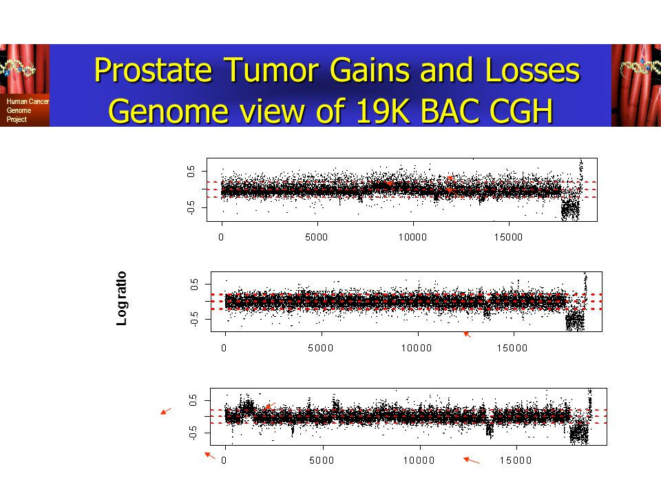 Log ratio Prostate Tumor Gains and Losses Genome view of 19K BAC CGH Prostate Tumor Gains and Losses Genome view of 19K BAC CGH