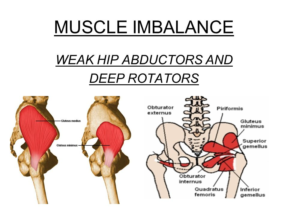 MUSCLE IMBALANCE WEAK HIP ABDUCTORS AND DEEP ROTATORS