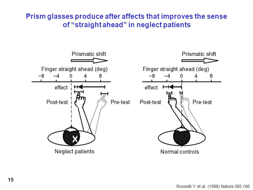 15 Prism glasses produce after affects that improves the sense of straight ahead in neglect patients Rossetti Y.