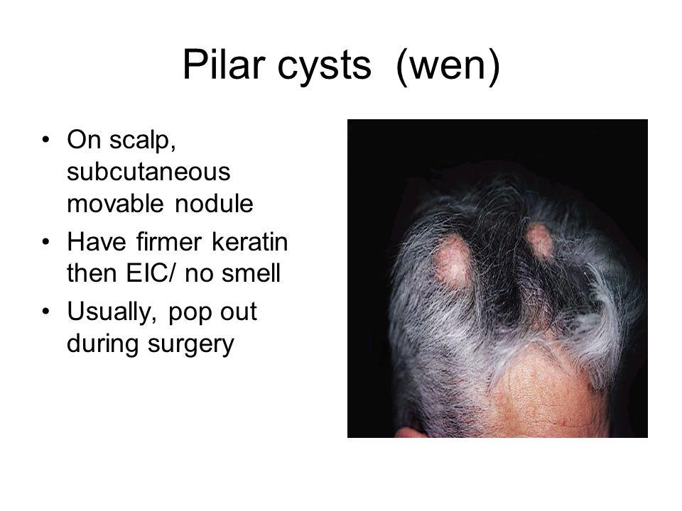 Discoid Lupus Erythematosus Chronic recurrent autoimmune disorder primarily affecting the skin.