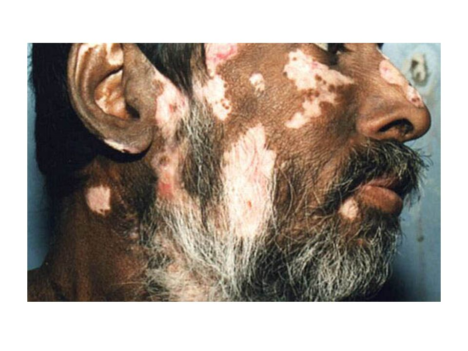 Discoid Lupus Erythematosus Clinical Lesions are rather distinctive, but sometimes resemble those of SLE Lab No anemia, normal ESR, ANA absent or low, anti- DNA absent Differential Dx SLE, rosacea, seborrhea, photosensitivity dermatitis