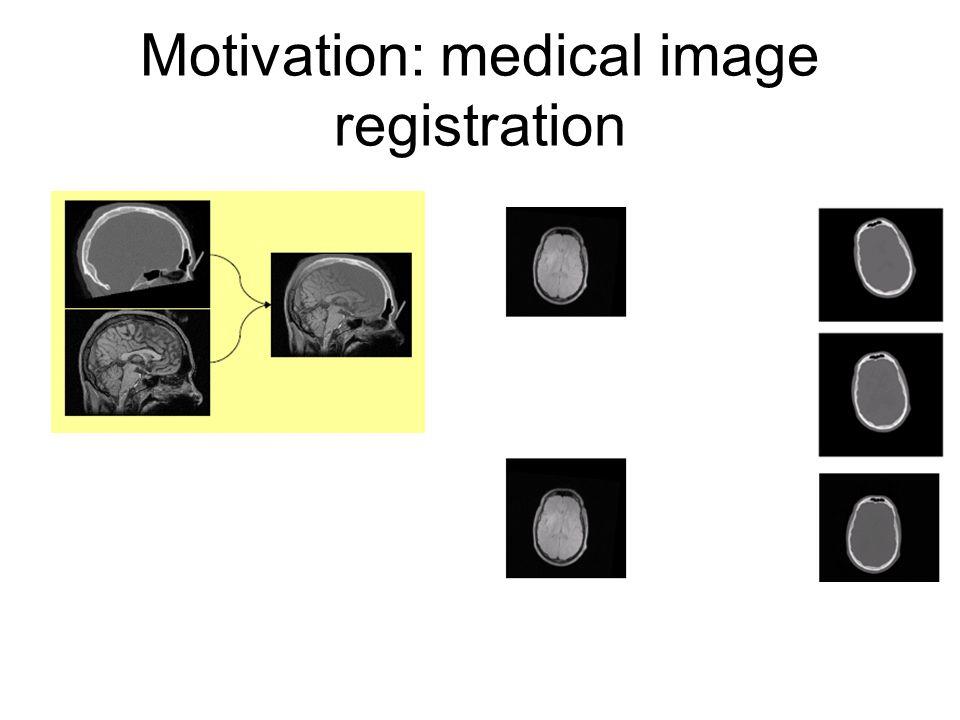 Motivation: medical image registration