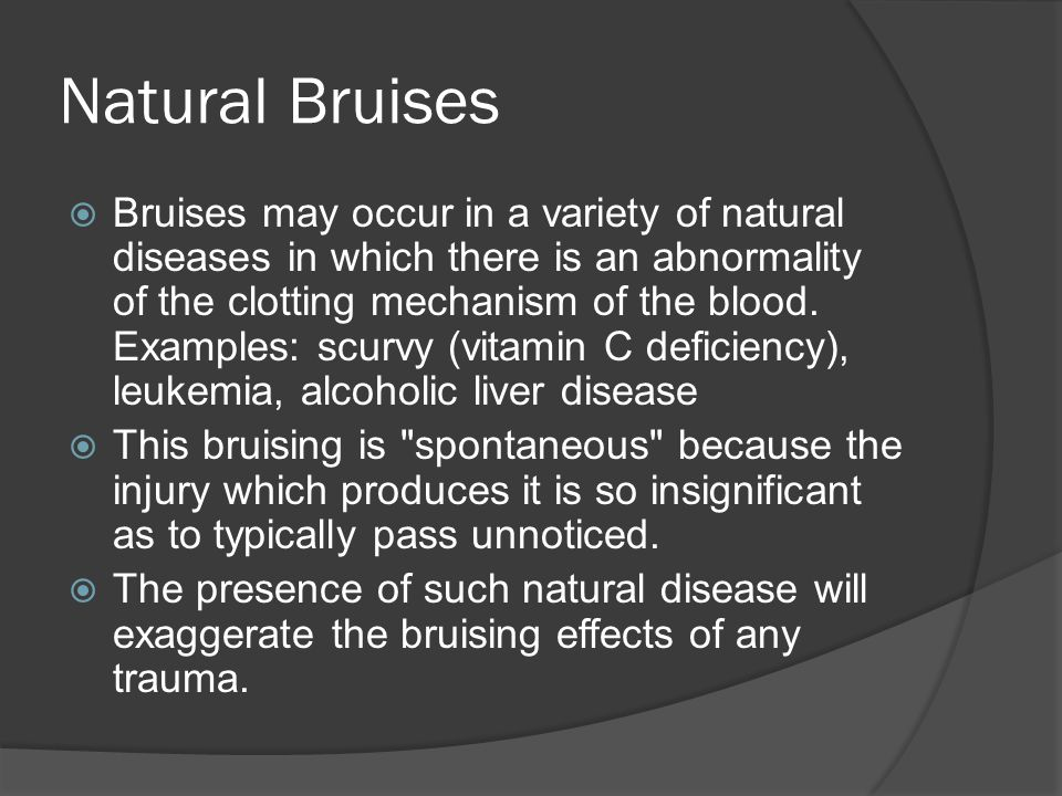 Natural Bruises  Bruises may occur in a variety of natural diseases in which there is an abnormality of the clotting mechanism of the blood. Examples