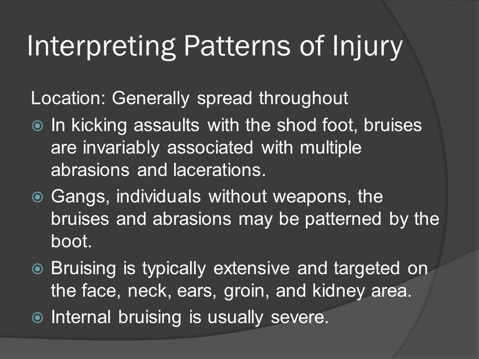 Interpreting Patterns of Injury Location: Generally spread throughout  In kicking assaults with the shod foot, bruises are invariably associated with