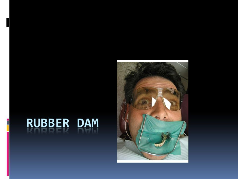 Why use a rubber dam.