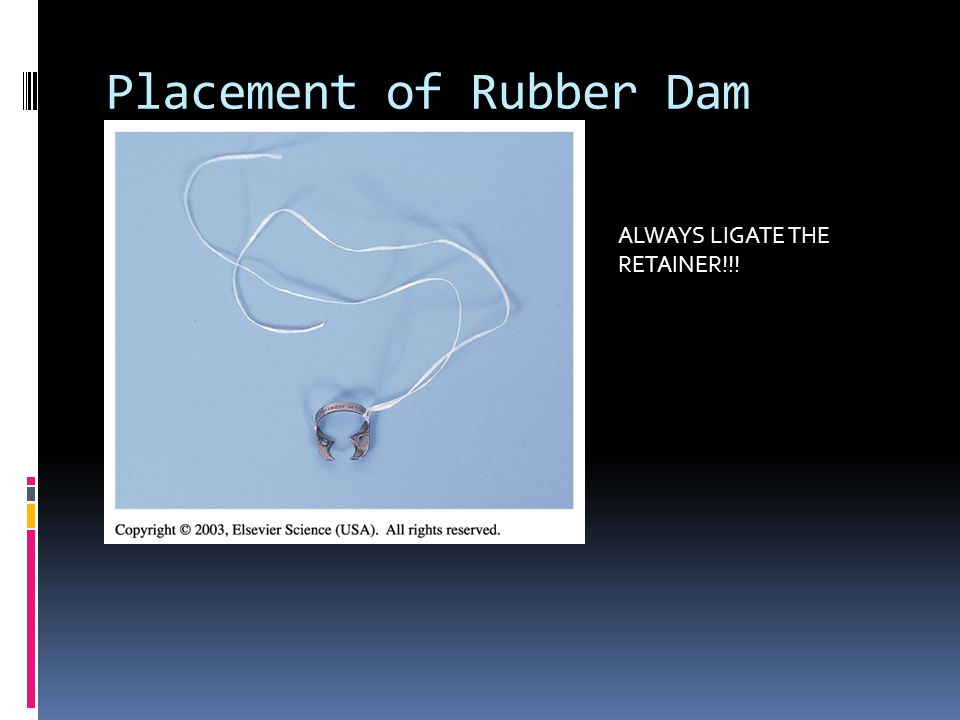 Placement of Rubber Dam ALWAYS LIGATE THE RETAINER!!!