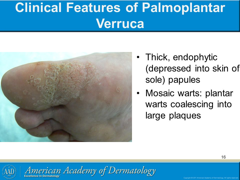 Clinical Features of Palmoplantar Verruca Thick, endophytic (depressed into skin of sole) papules Mosaic warts: plantar warts coalescing into large pl