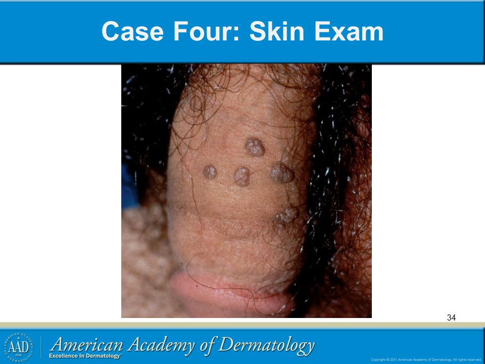 Case Four: Skin Exam 34