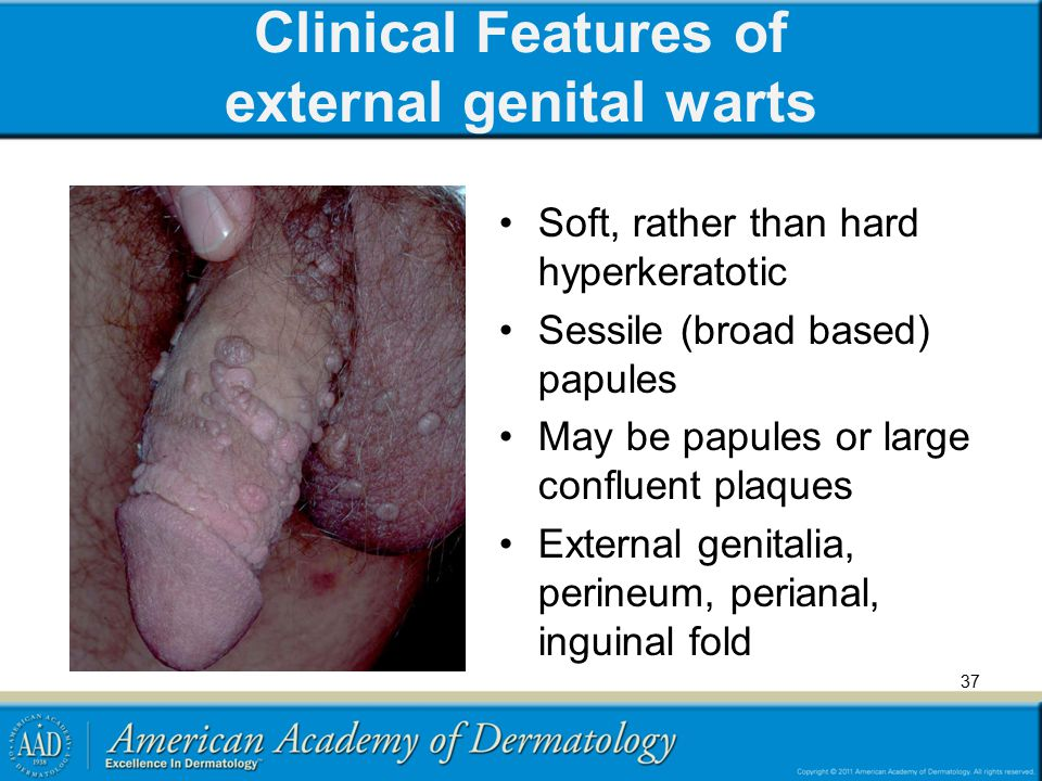 Clinical Features of external genital warts Soft, rather than hard hyperkeratotic Sessile (broad based) papules May be papules or large confluent plaq