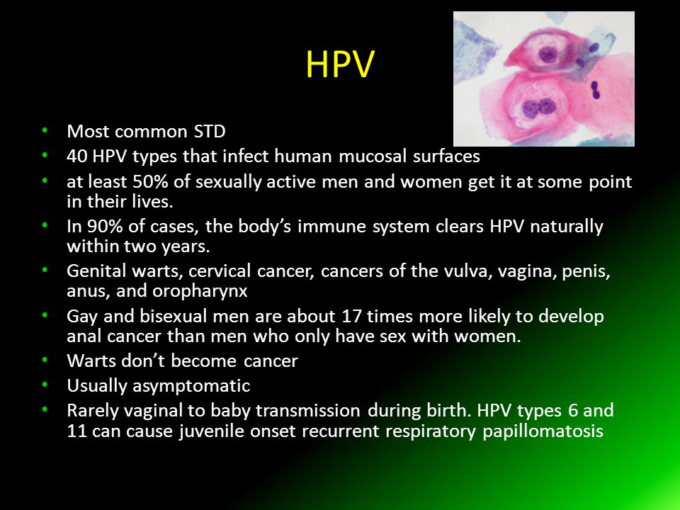 HPV Most common STD 40 HPV types that infect human mucosal surfaces at least 50% of sexually active men and women get it at some point in their lives.